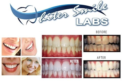 Different Teeths After Using Whiter Smile Labs