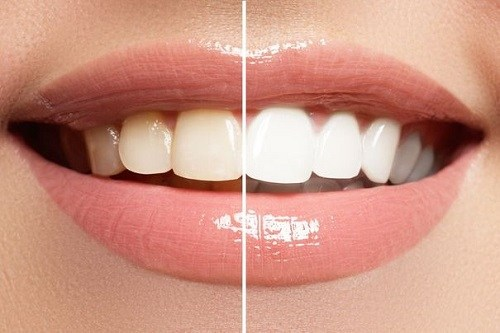 Teeth Difference After Using Whitening