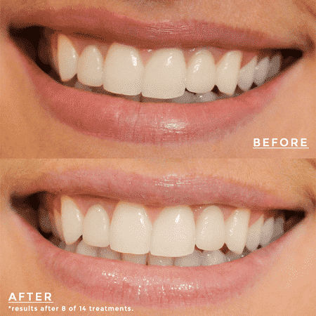Teeth Difference When Using Product
