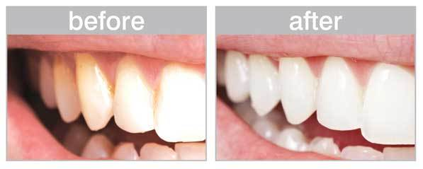 before and after deep teeth cleaning at home